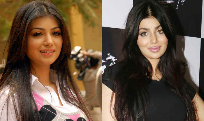 15 Celebrities Who Ruined Their Faces With Plastic Surgery